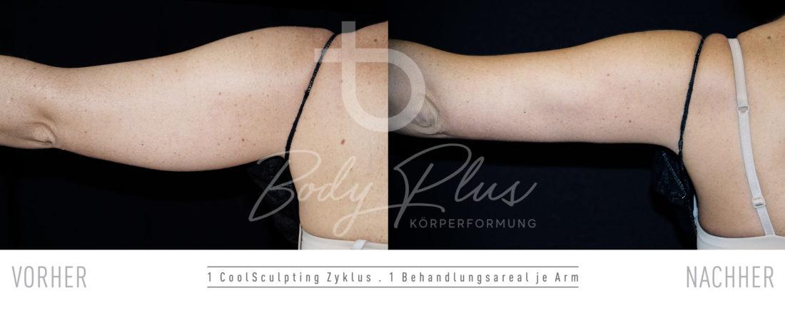 CoolSculpting Arm Vorher-Nachher Ergebnisse Linz-Salzburg