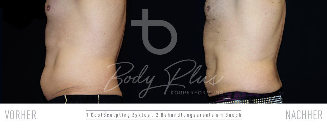 CoolSculpting Mann Bauch vorher-nachher fotos