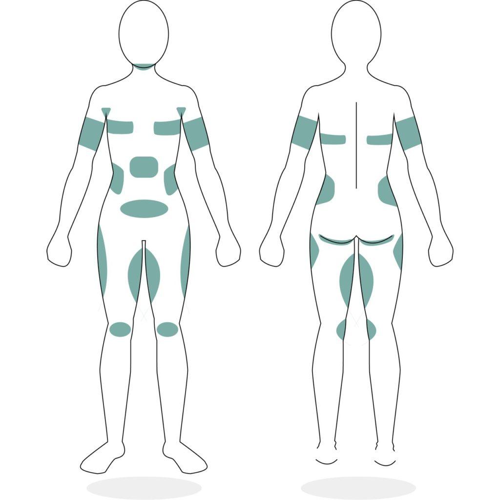 Mögliche Behandlungen Körperzonen